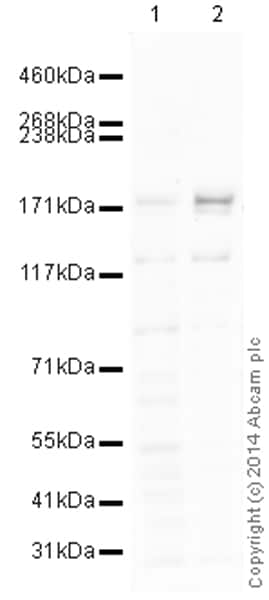 Western blot - Anti-KDM6B / JMJD3 antibody (ab169197)