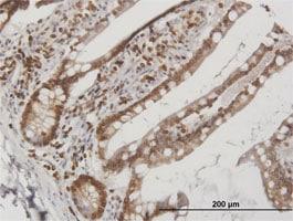 Immunohistochemistry (Formalin/PFA-fixed paraffin-embedded sections) - Anti-Lamin B Receptor/LBR antibody (ab169306)