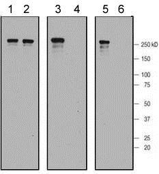 Western blot - Anti-LRRK2 (phospho S955) antibody [MJF-R11 (75-1)] (ab169521)