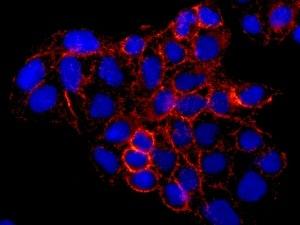 Immunocytochemistry/ Immunofluorescence - Anti-Stomatin antibody [EPR10420] (ab169524)