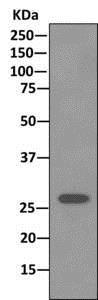 Western blot - Anti-Stomatin antibody [EPR10420] (ab169524)