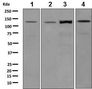 Western blot - Anti-DAAM2 antibody [EPR10797(B] (ab169527)