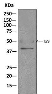 Immunoprecipitation - Anti-TRC40 antibody [EPR11423] (ab169539)