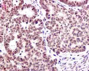 Immunohistochemistry (Formalin/PFA-fixed paraffin-embedded sections) - Anti-Zmat2 antibody [EPR11136] (ab169541)