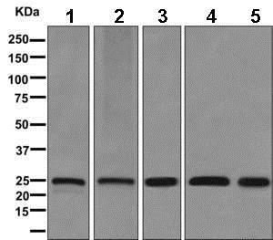 Western blot - Anti-Zmat2 antibody [EPR11136] (ab169541)