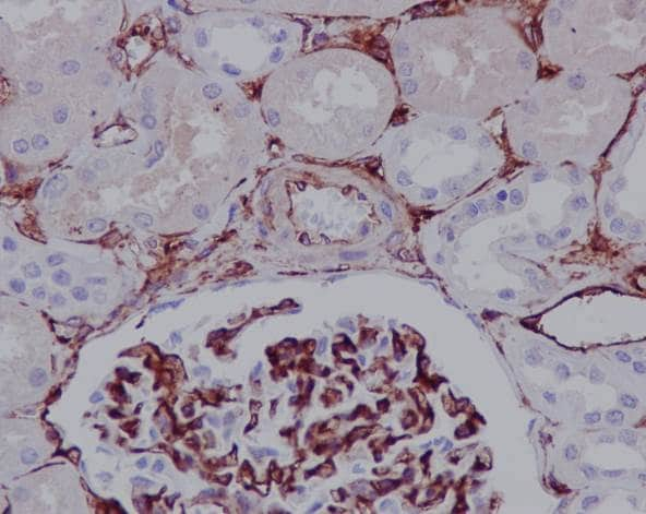 Immunohistochemistry (Formalin/PFA-fixed paraffin-embedded sections) - Anti-CD105 antibody [EPR10145-12] (ab169545)