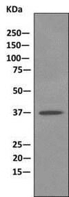 Western blot - Anti-TRC40 antibody [EPR11422] (ab169549)