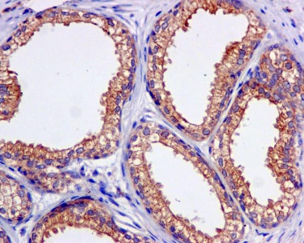 Immunohistochemistry (Formalin/PFA-fixed paraffin-embedded sections) - Anti-KBTBD11 antibody [EPR10056(2)(B)] (ab169551)