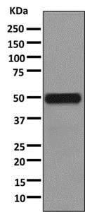 Western blot - Anti-uPA antibody [EP6274(2)] (ab169754)