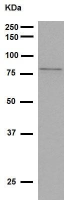 Western blot - Anti-5 Lipoxygenase/5-LO antibody [EP6072(2)] (ab169755)