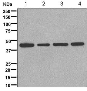 Western blot - Anti-B3GALT4 antibody [EPR11650] (ab169759)