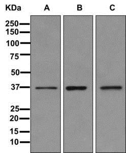Western blot - Anti-Repulsive Guidance Molecule A antibody [EP7990(2)] (ab169761)