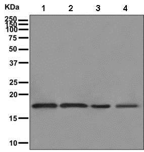 Western blot - Anti-ARPC5L antibody [EPR10274] (ab169763)