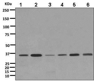 Western blot - Anti-CPOX antibody [EPR11927(B)] (ab169766)