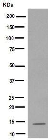 Western blot - Anti-SPANXD antibody [EPR8902] (ab169773)