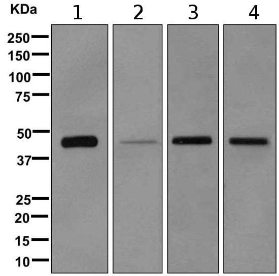 Western blot - Anti-NDRG2 antibody [EPR11911(B)] (ab169775)