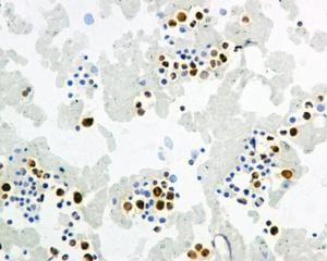 Immunohistochemistry (Formalin/PFA-fixed paraffin-embedded sections) - Anti-IFI16 antibody [EPR11767(B)] (ab169788)