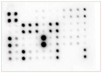 Multiplex Protein Detection - Mouse Cytokine Antibody Array - Membrane (97 targets) (ab169820)