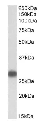 Western blot - Anti-Cardiac Troponin I antibody (ab169826)