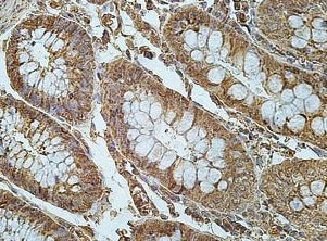 Immunohistochemistry (Formalin/PFA-fixed paraffin-embedded sections) - Anti-FRMD8 antibody (ab169933)