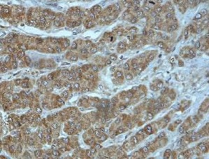 Immunohistochemistry (Formalin/PFA-fixed paraffin-embedded sections) - Anti-CXCL7/PBP antibody (ab169946)