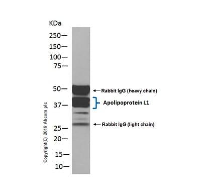 Immunoprecipitation - Anti-Apolipoprotein L1/APOL1 antibody [EPR2907(2)] - BSA and Azide free (ab169952)