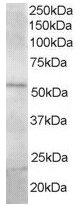 Western blot - Anti-FBXL2 antibody (ab17018)