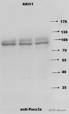 Western blot - Anti-FOXO3A antibody (ab17026)