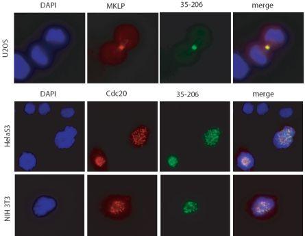 Immunocytochemistry/ Immunofluorescence - Anti-PLK1 antibody [35-206] (ab17056)