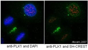 Immunocytochemistry/ Immunofluorescence - Anti-PLK1 antibody [36-298] (ab17057)