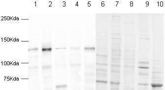 Western blot - Human pan Cadherin peptide (ab17098)
