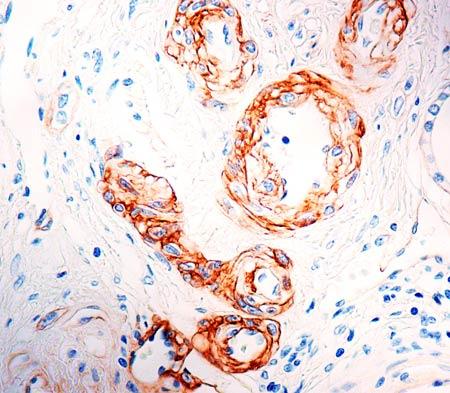 Immunohistochemistry (Formalin/PFA-fixed paraffin-embedded sections) - Anti-Laminin alpha 5/LAMA5 antibody [4C7] (ab17107)