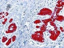 Immunohistochemistry (Formalin/PFA-fixed paraffin-embedded sections) - Anti-Cytokeratin 8+18 antibody [5D3] (ab17139)
