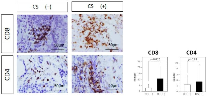 Immunohistochemistry (Formalin/PFA-fixed paraffin-embedded sections) - Anti-CD8 alpha antibody [C8/144B] (ab17147)