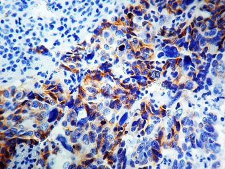 Immunohistochemistry (Formalin/PFA-fixed paraffin-embedded sections) - Anti-NCAM1 antibody [1213C3.D5], prediluted (ab17235)
