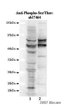Western blot - Anti-Phospho - (Ser/Thr) Phe antibody (ab17464)