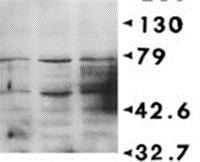 Western blot - Anti-Phosphoserine antibody [PSR-45] (ab17465)