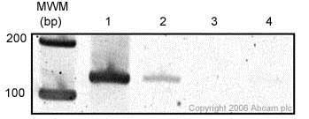ChIP - Anti-KDM1 / LSD1 antibody - ChIP Grade (ab17721)