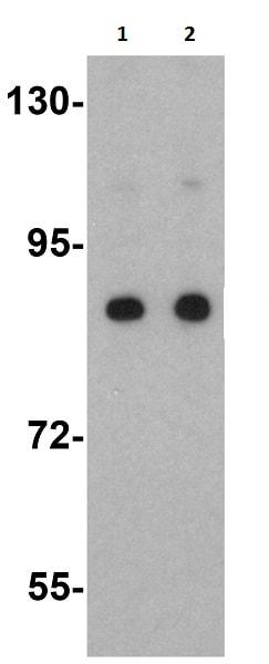 Western blot - Anti-SARM antibody (ab17812)