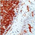 Immunohistochemistry (Formalin/PFA-fixed paraffin-embedded sections) - Anti-HLA-DR antibody [SPM289] (ab17844)