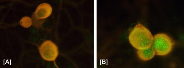Immunocytochemistry - Anti-c-Fos (phospho T232) antibody (ab17933)
