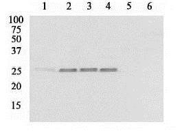 Western blot - Anti-Hsp27 (phospho S86) antibody (ab17938)