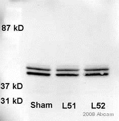 Western blot - Anti-ERK1 + ERK2 antibody (ab17942)