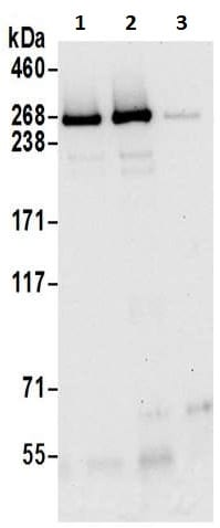 Immunoprecipitation - Anti-Neurofibromin antibody (ab17963)