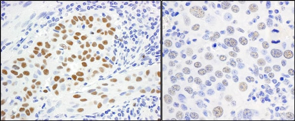 Immunohistochemistry (Formalin/PFA-fixed paraffin-embedded sections) - Anti-MCM5 antibody (ab17967)