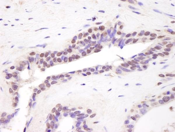 Immunohistochemistry (Formalin/PFA-fixed paraffin-embedded sections) - Anti-BRD8/p120 antibody (ab17968)