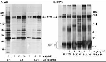 Western blot - Anti-BRD8/p120 antibody (ab17968)