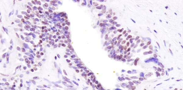 Immunohistochemistry (Formalin/PFA-fixed paraffin-embedded sections) - Anti-BRD8/p120 antibody (ab17969)