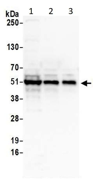 Western blot - Anti-p53 antibody (ab17990)