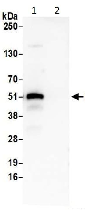 Immunoprecipitation - Anti-p53 antibody (ab17990)